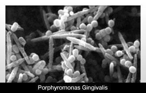 Porphyromonas gingivalis,  periodontitis causing bacterium