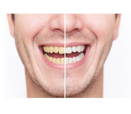 gray tooth discoloration in adults